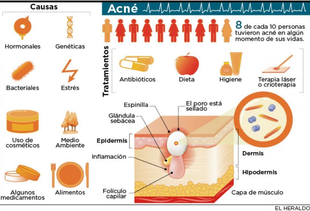 acne-causas-y-tratamientos